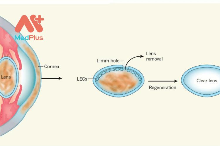 Phương pháp tái tạo thủy tinh thể bằng tế bào gốc